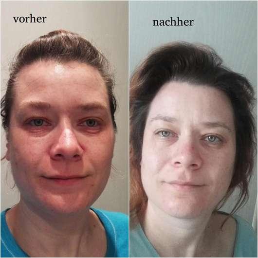 everdry Antibakterieller Gesichts-Reinigungsschaum - Hautbild vor und nach der Anwendung