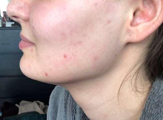 Alcina UV Control Serum SPF 25 - Haut vor der Testphase