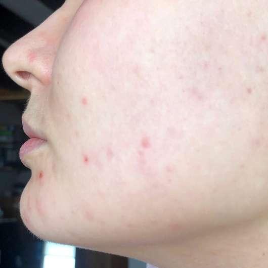 Alcina UV Control Serum SPF 25 - Haut nach 4 Wochen Testphase