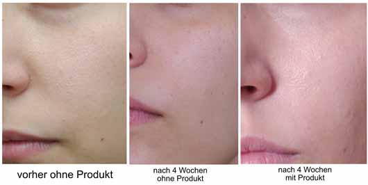 Alterra 6in1 Beauty Balm, Farbe: Mittel - Collage Hautbild