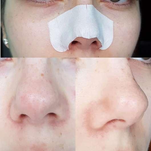 Bioré Zaubernuss Ultra-Tiefenreinigende Clear-Up-Strips - Vor der Anwendung und Strip auf der Nase