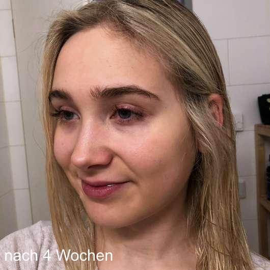 Dr.Jart+ Ceramidin Liquid Moisturizing Toner - Hautbild nach 4 Wochen