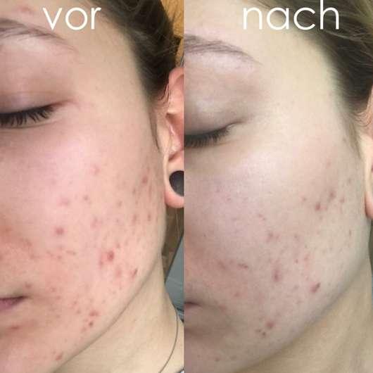 Haut vor dem Test (links) // Haut nach dem 5-wöchigen Test (rechts)