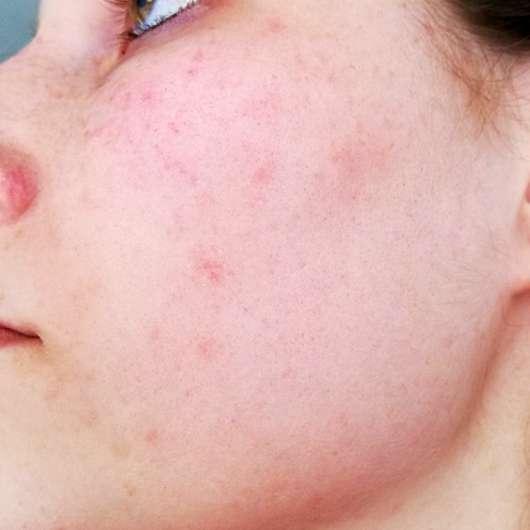 Alcina UV Control Serum SPF 25 - Hautbild vorher