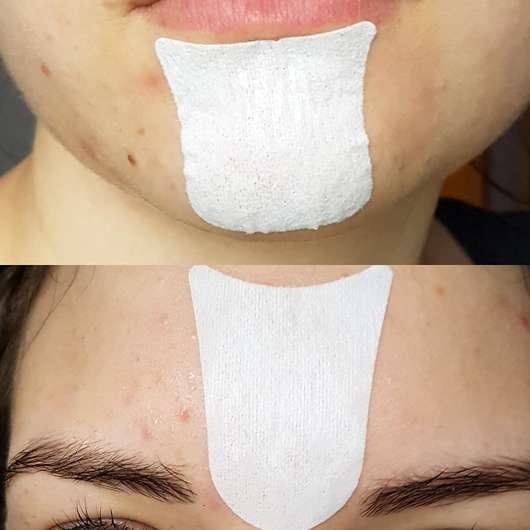 Balea Hautrein Anti-Mitesser Facestrips - Stripes im Gesicht