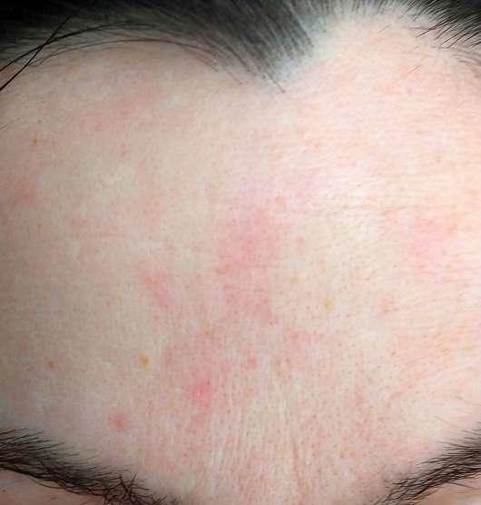Gertraud Gruber Enzym Peeling Puder - Hautbild vor der Testphase