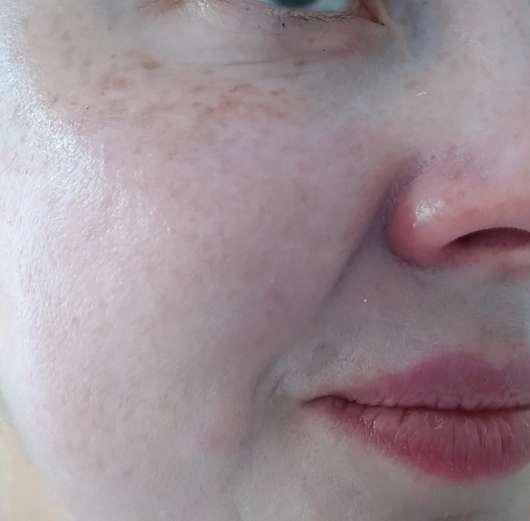 Haut nach dem Einziehen der Creme (ohne Puder darüber) - Speick SUN Sonnencreme SPF 30