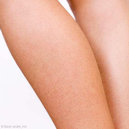 Erdbeer-Beine nach der Rasur? Das hilft!