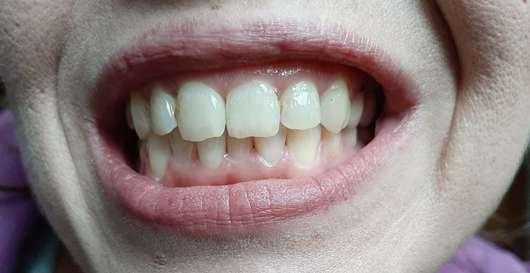 MARA EXPERT Aktivkohle Plus Sensitiv Zahncreme - Zähne vor der Anwendung