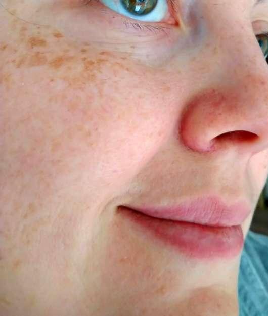 frei öl Hydrolipid FeuchtigkeitsCreme - Hautbild vor der Testphase