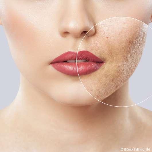 Sensible Haut: die besten Schminktipps –